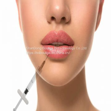 hylaronic acid for lip injectable 1ml deep cross linked for lip Enhancement