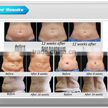 50 / 60Hz Beauty Weight Loss Machines Cryolipolysis Freeze