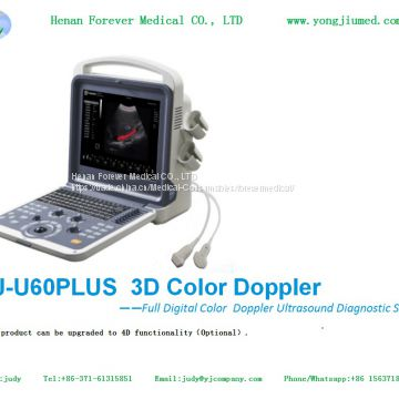 Portable Color Doppler Ultrasound Scanner System