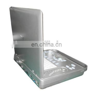 15 inch 2D/3D B/W Laptop digital portable ultrasound units