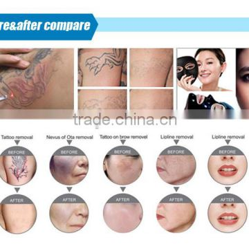 800mj Professional Dual Handles Diode Laser Machine Hair Naevus Of Ota Removal Removal Spa Use Nd Yag Laser+diode Laser